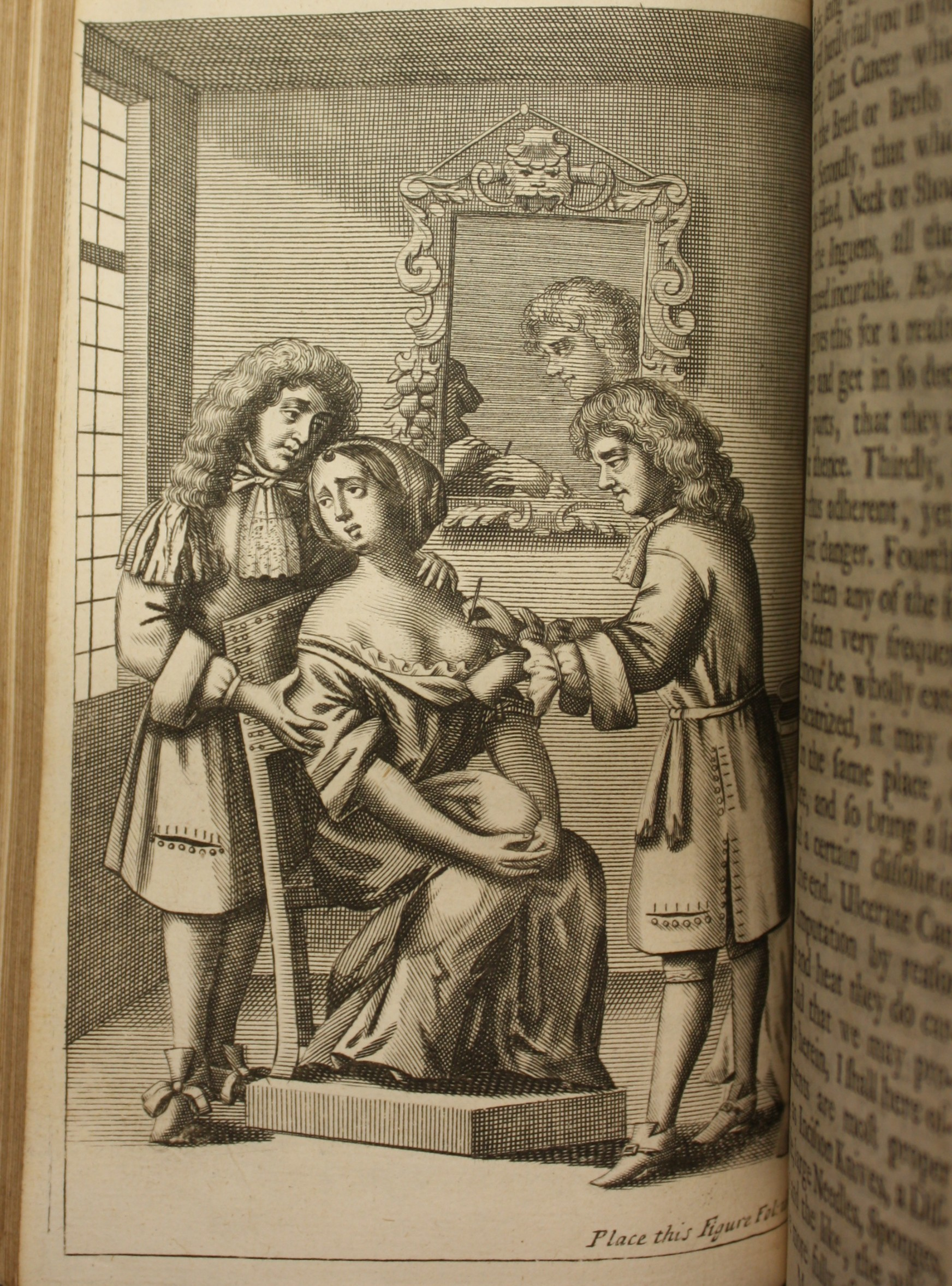Engraving of an operation to remove cancer