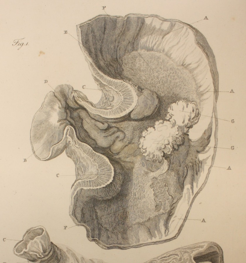 Engraving showing a tumour in the stomach